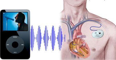 ipod-pacemaker LiPod può provocare disfunzioni nei Pacemaker cardiaci